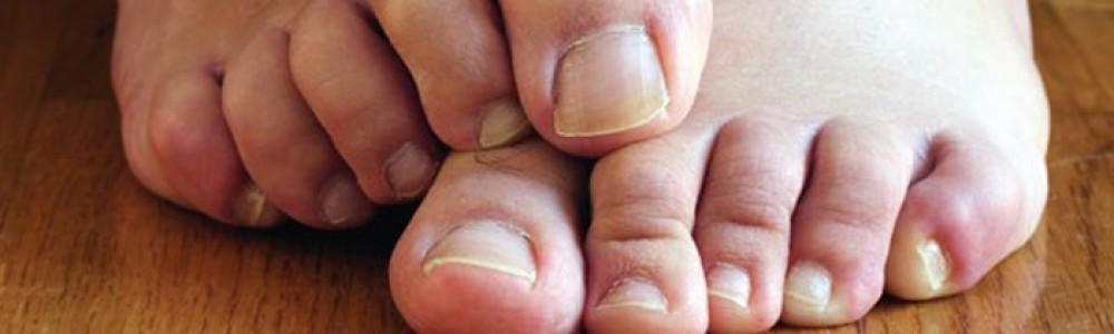 Glivična okužba nohtov